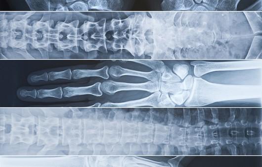 Текстура рентгеновского снимка